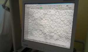 EEG na Zwets