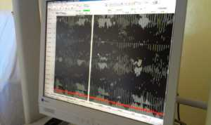 EEG voor Zwets