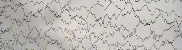 De EEG monteur