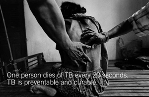 One person dies of TB every 20 seconds